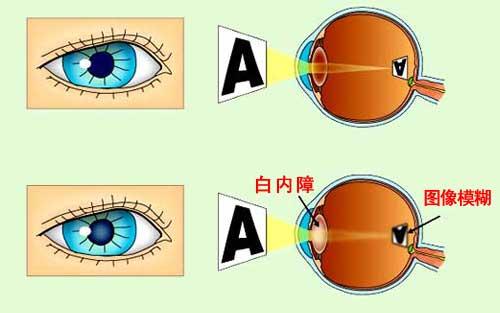 白内障眼球图片_光线可能就透不过去了甚至导致眼睛看不见,这也就是白内障发病的原因.