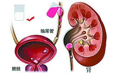 儿童输尿管结石症状