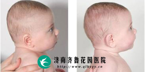 婴儿头型正常图_