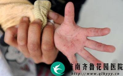 宝宝手掌心有红点是不是手足口病图片