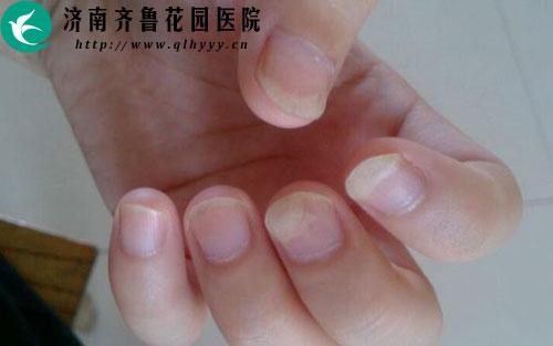 手指甲和肉分離是怎么回事圖片