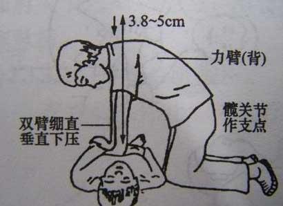 济南市急救中心复苏成功心脏骤停患者