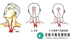 体检时医生建议加颈动脉彩超检查可以不做吗
