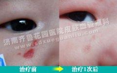 下眼睑长红斑治疗的话会影响眼睛的正常视力吗
