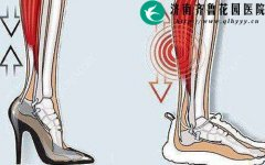 女性经常穿高跟鞋对健康有什么影响
