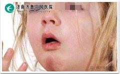 引起孩子咳嗽的原因有哪些