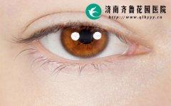 眼睛干涩疼痛怎么办 如何调理