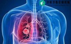 不抽烟的人需要做肺癌筛查吗