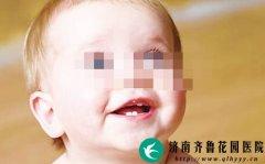 到了换牙时间 孩子乳牙不掉怎么办