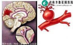 脑溢血发病初期会有哪些症状