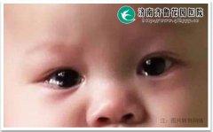 宝宝泪道阻塞眼睛整日泪汪汪的怎么办
