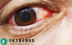 眼睛充血的原因是什么 怎么办