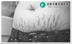 孕期怎么做才能预防妊娠纹发生