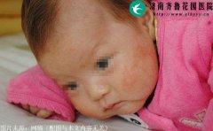 宝宝长奶癣可以擦母乳吗