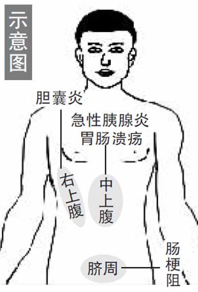 急性阑尾炎症状_中医肚子疼的身体分区法_济南齐鲁花园医院