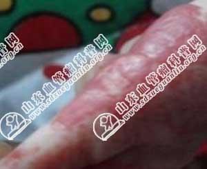 上图是胳膊毛细血管瘤症状实例图片.平常要注意保持毛细血管瘤的