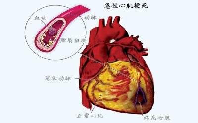 突然出现胸痛应警惕急性心梗发作