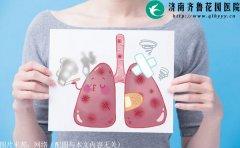 体检查出肺结节就是得肺癌了吗