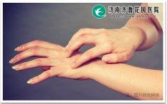 皮肤病是哪些原因引起的 得了怎么办