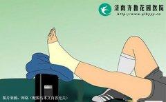脚扭伤后可以第一时间贴膏药或抹红花油吗