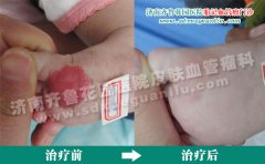 孩子脚心上的红斑块没有治面积会一直长大吗