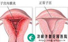 为什么女性容易患子宫内膜炎